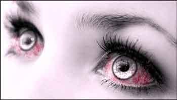 глаза заболели