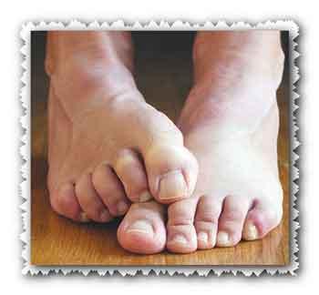 Мази от грибка на ногах
