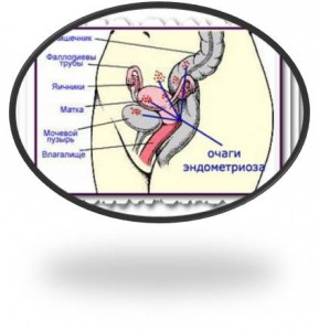 Рецепты от эндометриоза