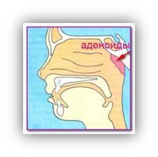 Чем капать в нос при аденоидах