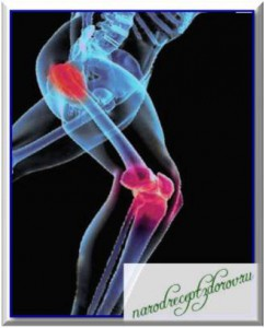 Рецепты лечения ревматоидного артрита