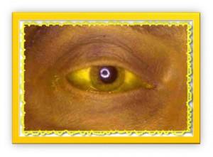 лечение желтухи народными средствами