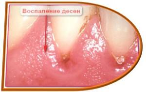 Воспаление и кровоточивость десен