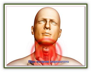 Ларингит - воспаление гортани