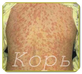 симптомы кори и ее лечение