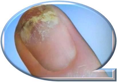 Домашние средства от грибка ногтей