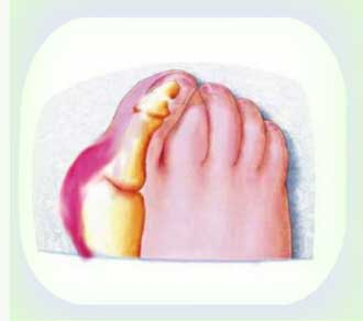 Домашнее лечение косточки большого пальца ноги
