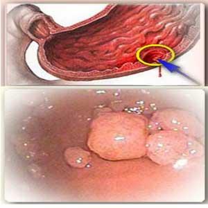 Лечение язвы и полипов желудка Народные рецепты здоровья