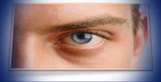 профилактика и средства лечения глаукомы