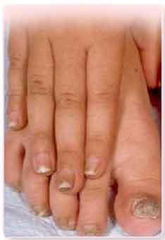 Домашний лак от грибка ногтей