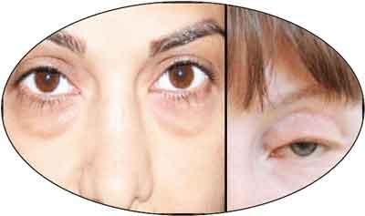 глазам помогут компрессы