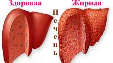 Поможет при жировом гепатозе печени